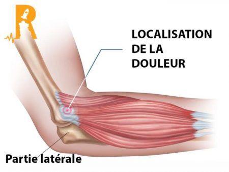 épicondylite douleur latérale