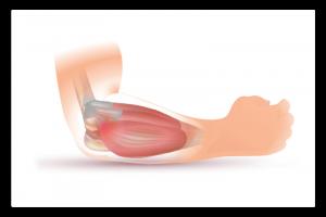 illustration de l'épicondylite