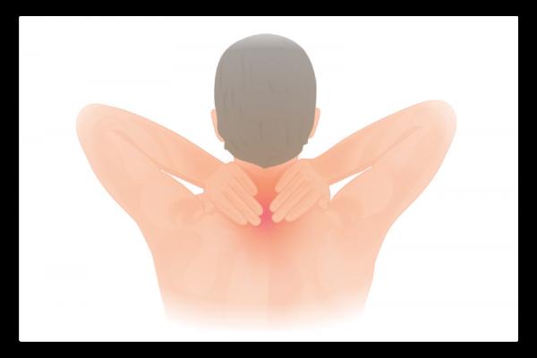 illustration de la douleur cervicale
