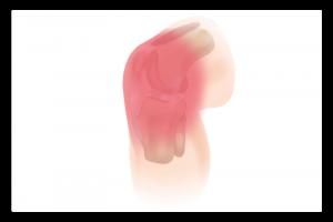 illustration du syndrome rotulien
