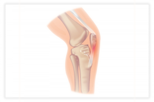 illustration de la tendinite rotulienne