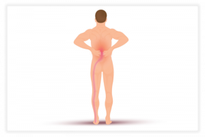 illustration de la douleur sciatique
