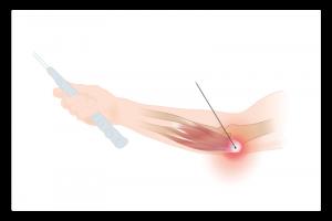 illustration de l'épitrochléite