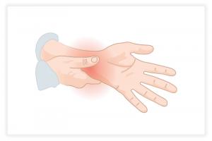 illustration de la tendinite du poignet
