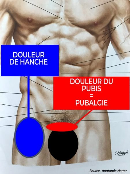 localisation de la douleur du pubis
