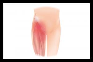 illustration de la pubalgie