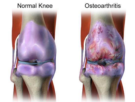 arthrose genou traitement naturel