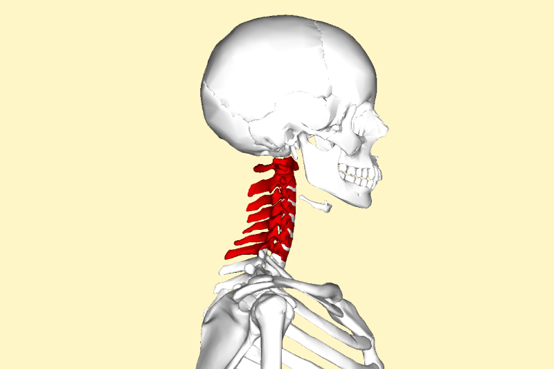 schema de l'arthrose cervicale
