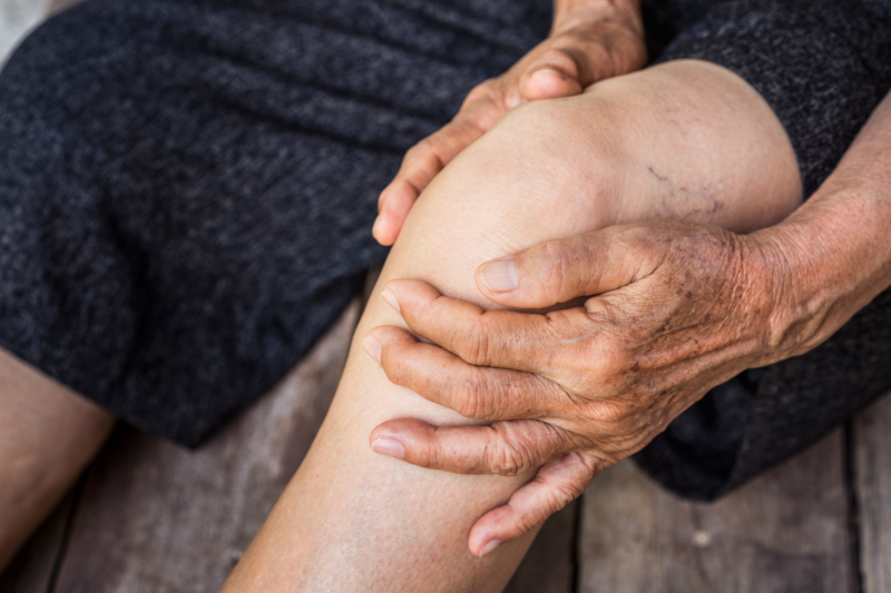 personne âgée ayant de l'arthrose aux genoux