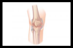 illustration de l'arthrose du genou