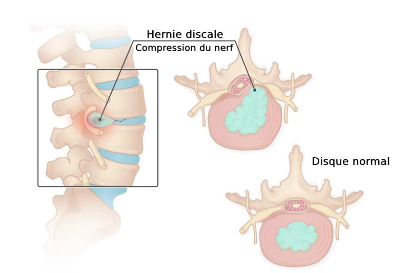 illustration de l'hernie discale lombaire