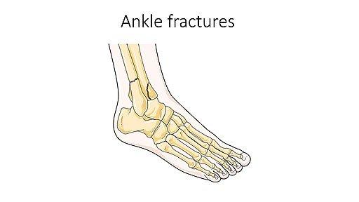 Entorse grave avec fracture de la cheville