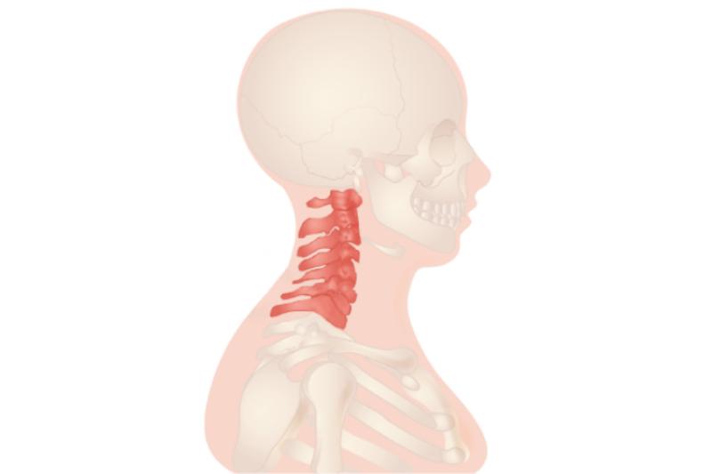 illustration de l'hernie discale cervicale