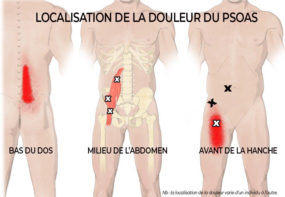 Localisation douleur psoas
