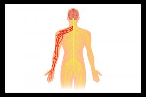 illustration de la névralgie cervico-brachiale