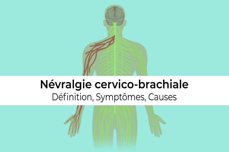 définition causes et symptômes de la névralgie cervico brachiale