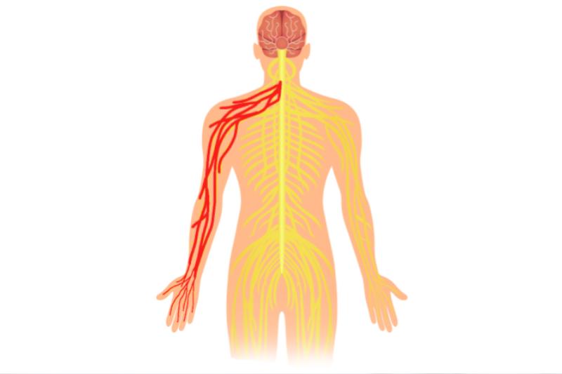 illustration de la névralgie cervico brachiale
