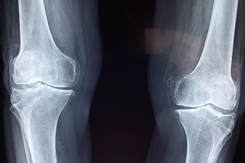 radiographie de l'arthrose du genou