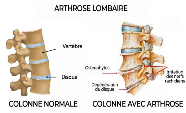 schéma arthrose lombaire